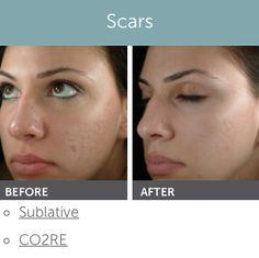 Solved. Facial rejuvenation wyoming
