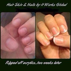 Hair, Skin & Nails Results! www.beatthebloat.myitworks.com