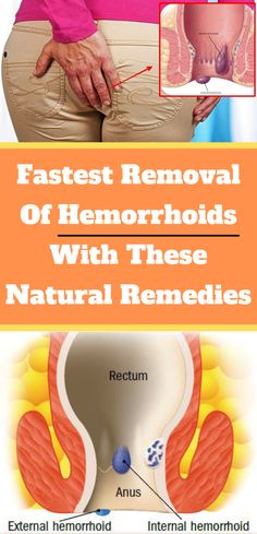Fastest Removal of Hemorrhoids With These Natural Remedies ! Fastest Removal of Hemorrhoids With These Natural Remedies ! Flat Lay Fotografie, Make Up Tutorials, Endocannabinoid System, Little Presents, How To Remove, How To Get, Life Quotes Love, Group Boards, Thinking Day