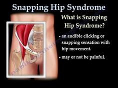 Do you have clicking hips? Learn about Snapping Hip Syndrome, a common complaint for dancers. Early treatment and rehabilitation means a faster recovery.