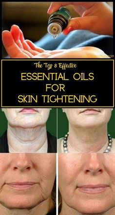 Essential Oils for Skin Tightening - Get rid of Saggy skin Here& the list of some amazing vital essential oils that prevent skin aging and promote skin tightening. Therapeutic Essential Oils, Essential Oils For Skin, Essential Oil Blends, Homemade Essential Oils, Relleno Facial, Sagging Skin, Health And Beauty Tips, Health Tips, Beauty Guide
