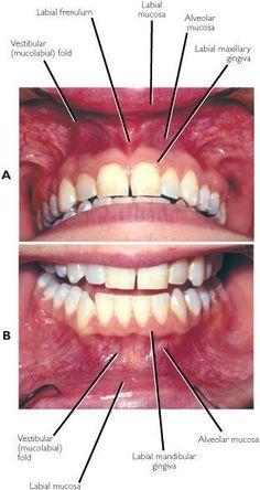 Gums Cause Heart Trouble - Dental News - Articles Dental Assistant Study, Dental Hygiene Student, Dental Hygienist, Dental Humor, Dental Procedures, Teeth Health, Dental Health, Oral Health, Health Care