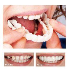 Instant Snap on Perfect Smile Veneers Snap on Smile Teeth Best Teeth Whitening, Whitening Kit, Perfect Smile Teeth, Snap On Smile, Veneers Teeth, Dental Veneers, Get Whiter Teeth, Coconut Oil For Teeth, Teeth Braces