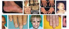 Clouston Syndrome - http://www.medikova.com/disease-clouston-syndrome