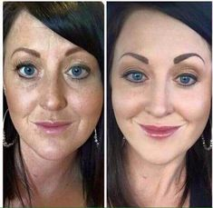 It's called Reverse for a reason! 2 months. In both photos she is wearing makeup. Her makeup looks SO much better in the second photo. Why? Because she is using amazing skincare. Reverse was our number one selling regimen selling off the shelves when we were in Nordstrom. It remains one of our best, most incredible transformations I've seen with any regimen. The testimonies and photos are amazing. Guaranteed results or money back!