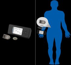 GlySens ICGM - Noninvasive glucose monitoring sensor makes you forget about diabetes