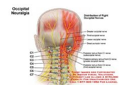 This condition is a distinct type of headache caused by irritation or injury of the occipital nerves.