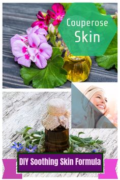 Dealing with Couperose Skin? Don't worry! This DIY Soothing Skin Formula for Couperose Skin is sure to help you - http://beautynaturalsecrets.com/soothing-skin-formula-for-couperose-skin/
