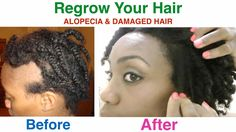 I cured my Alopecia Areata & Damaged Hair and I share my tips with you on how I did this in this video. I used my Shea Butter Mixture as well as my Black Soa...