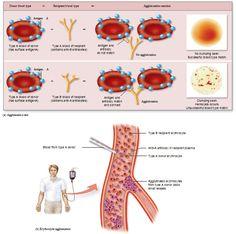 erythrocyte agglutination reaction, hemolysis Rh Factor, Blood Components, Blood Types, Medical Massage, Nursing School Notes, Blood Groups, Learn Something New Everyday, Hematology, Medical Laboratory
