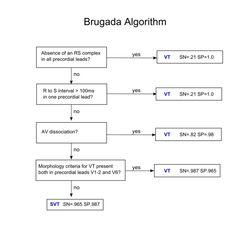 Brugada algorithm for VT vs. SVT with aberrancy Medical Symbols, Medical Humor, Medical School, Brugada Syndrome, Ekg Interpretation, Medical Laboratory Science, Medical Gifts, Doctor Humor, Dissociation