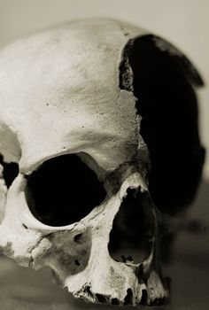 moshita:  close up of a human skull with a hole in the...