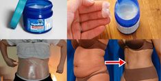 Vicks Vaporub has been used for so many things like headaches, cough, congested nose, throat congestion and colds. But do you know that Vicks VapoRub can be used for many other things as well? Reduce Belly Fat, Burn Belly Fat, Cellulite, Vapo Rub, Fat Burning Cream, Vicks Vaporub Uses, Uses For Vicks, Cold Home Remedies, Congested Nose
