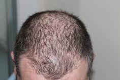 Una #dieta equilibrada, baja en #grasas y beber #agua abundante también ayuda a la buena #regeneración del #cabello