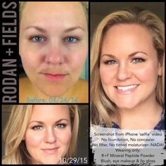 """Check out Lisa's results...foundation and concealer free!!! Love it! Here's what Lisa has to say """"I have nothing covering my skin but Rodan + Fields Mineral Peptide Powder. My melasma...is not plaguing my life anymore...it is ALL thanks to the Reverse regimen (including the AWARD WINNING Skin Lightening Accelerator pack) plus the Redefine Macro-Exfoliator and Multi-Function Eye Cream."""" She looks great and you can too!!! Don't keep second guessing yourself...try it!"""