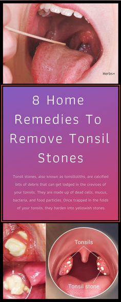 Tonsil stones, also known as tonsilloliths, are calcified bits of debris that can get lodged in the crevices of your tonsils. Holistic Remedies, Skin Care Remedies, Health Remedies, Home Remedies, Natural Remedies, Holistic Medicine, Holistic Healing, Herbal Medicine, Tonsilitis Remedy