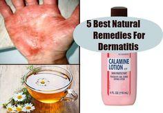 5 Best Natural Remedies For Dermatitis