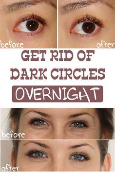 Get Rid of Dark Circles Under Your Eyes Overnight - Be a Healthy Girl