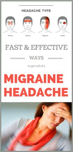 Watch This Video Classy Natural Headache Remedy for Instant Headache Relief Ideas. Incredible Natural Headache Remedy for Instant Headache Relief Ideas. Headache Cure, Home Remedy For Headache, Nausea Relief, Severe Headache, Natural Headache Remedies, Migraine Relief, Headache And Vomiting, Science, Health