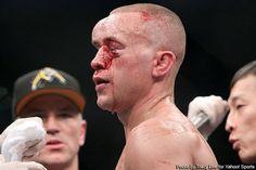 Mark Hominick after Jose Aldo beat on him at UFC 129