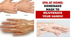 The skin on our hands is extremely sensitive and very thin. We always need to treat it with special care. There are many factors that can harm our skin. Dry Skin Remedies, Natural Acne Remedies, Sleep Remedies, Health Remedies, Homemade Eye Cream, Homemade Skin Care, Homemade Masks, Homemade Beauty, Acne Scar Removal