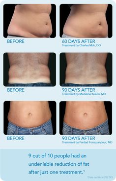 CoolSculpting Before & After Photos:    CoolSculpting Complete is an FDA-cleared procedure to eliminate fat with no surgery or downtime.  Precises cooling technology freezes stubborn fat, which is then naturally eliminated from the body. For more information visit: http://www.coolsculpting-raleigh.com/about.html
