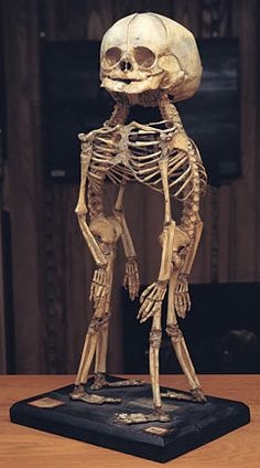 Cephalothoracopagus. Skeleton of conjoined twins,