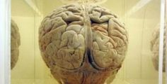 A pill with blueberries, green tea , D3, carnosine, biovin may help brain health.