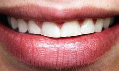 bruxismo do sono (movimentos repetitivos da mandíbula durante o sono, com ranger e apertar dos dentes) causa diminuição da atividade elétrica dos músculos mastigatórios
