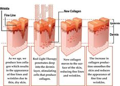 red light therapy beds pics | Red Light Therapy | FLORA VIDEO STORE OFFERS THIS TECHNOLOGY