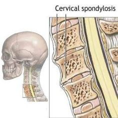 How Do We Recogize The Symptoms Of Cervical Spondylosis?