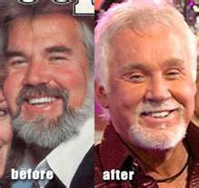 The fact that Kenny Rogers has undergone so much plastic surgery that he looks Asian