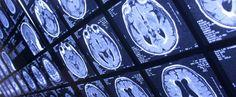 Scientists use ultrasound waves to eliminate Alzheimer's-related brain plaque Alzheimer's Brain, Brain Health, Brain Aneurysm, Nuclear Medicine, Natural News, Alzheimer's And Dementia, First Health, Health Articles, Alzheimers