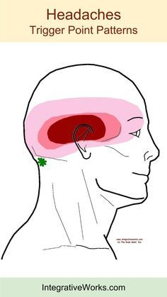 Understanding Trigger Points Headache On The Top Of Your