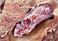 Blood clot: Coloured scanning electron micrograph (SEM) of a blood clot (thrombus) in an arteriole (small blood vessel) of a salivary gland.