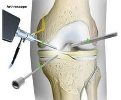 Arthroscopic surgery is used to diagnose and treat many joint problems. This significant advance in joint care allows for a rapid return to improved activity. Most commonly used in knees, shoulders and ankles, the arthroscope can also be used for the spine, hips, wrists, and elbows.   For more information, please visit our website at http://www.dl-ortho.com/treatments/knee/.