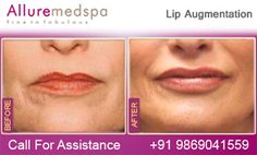 Alluremedspa is Leading Lip Augmentation Center Offering Lip Augmentation/ Implant Surgery at Less Price/Cost Compare to Dubai, Abu Dhabi, Sharjah, UAE (United Arab Emirates) by Best Cosmetic Surgeon/Doctor Dr. Milan Doshi in Mumbai, India. Lip Implants, Lip Augmentation, Lip Injections, Lip Plumper, Sharjah, Abu Dhabi, Fly To India, Dubai, Surgeon Doctor