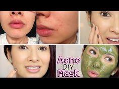 DIY Acne Mask | Hydrates & Exfoliate - YouTube