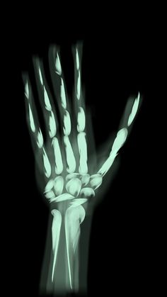 Hand x-ray  (my Sunday School teacher is also a doctor and he let me know it's missing one of the hand bones) , REB, on Sketch Guru.