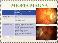 Resultado de imagen de miopía magna