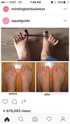 For all those who have bunions you can treat it by simple exercise at home! A bunion is an unnatural, bony hump that forms at the base of the big toe where it attaches to the foot. Health Tips, Health And Wellness, Health Fitness, Natural Cures, Natural Healing, Health Remedies, Home Remedies, Easy At Home Workouts, Bunion