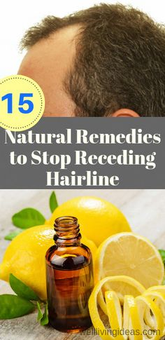 15 Natural Remedies to Stop Receding Hairline and Regrow Hair that Actually Works #HowToPreventBabyHairLoss #OilForHairLoss