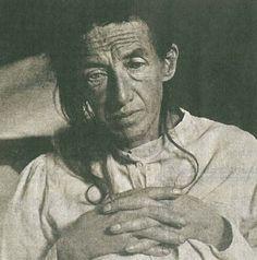 Auguste Deter, Alois Alzheimer's patient in November 1901, first described patient with Alzheimer's Disease