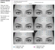 Forehead Botox injection pattern - - My MartoKizza Facial Fillers, Botox Fillers, Dermal Fillers, Botox Brow Lift, Eyebrow Lift, Botox Injection Sites, Botox Injections, Botox Facial, Botox Training