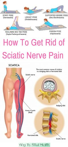 How do you know when you have sciatic nerve pain! If you feel pain from your lower back to behind the thighs spreading down below your knees, you might be suffering from sciatica.