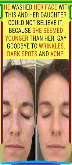 Beauty Tips For Face, Best Beauty Tips, Natural Beauty Tips, Health And Beauty Tips, Beauty Skin, Health Tips, Diy Beauty, Beauty Care Routine, Beauty Hacks Skincare