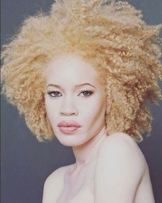 Model and activist Diandra Forrest raises awareness for albinism and women's rights. Watch her TEDx Talk and campaign for UN Human Rights, inside. Check it out —> http://www.afropunk.com/…/feature-model-and-activist-diandr… picture credit: Luis Quezada @luey78