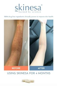 Say Goodbye To All Kinds of Problematic Skin Types With The ONLY 100% Natural Supplement Formulated To Heal Your Skin From The Inside. 92% Success Rate! It Works For You Or Your Money Back! What Are Probiotics, Gut Microbiome, Drug Free, Natural Supplements, Natural Healing, Clear Skin, Healthy Skin, Success