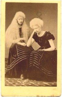 Nineteenth Century Images of Albinism - un-indentified albino girl
