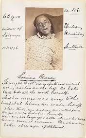 Image result for asylum patients records